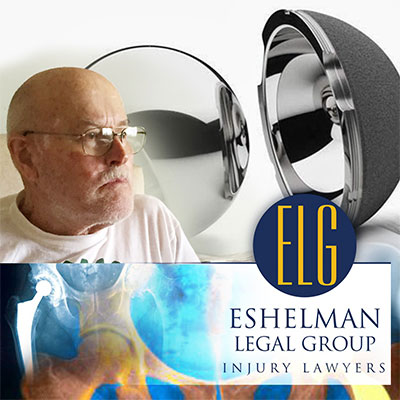 Hip Replacement Implant Lawsuit, Canton Injury Attorney, Eshelman Legal Group