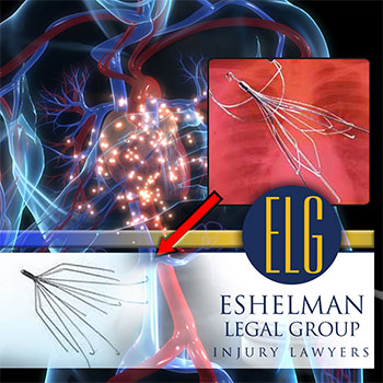 IVC Filter Lawsuit, Personal Injury Attorney, Eshelman Legal Group